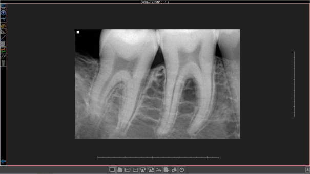 FONA_OrisWin_4_0_Screenshot_Intraoral
