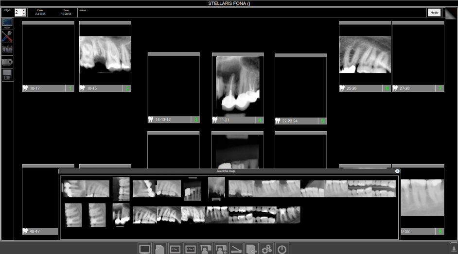 OrisWin 4.2 is now THE imaging software solution for all your intraoral needs.
